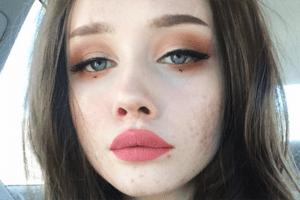 Respekt: Dieses Mädchen steht zu ihrer Akne und macht anderen Mut