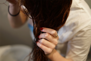 Haare schmerzen? DAS hilft dagegen